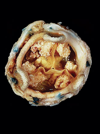 A bioprosthetic porcine valve with calcifications