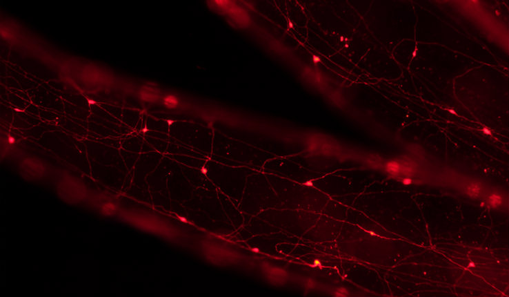 Tentacles of Nematostella with subpopulation of neurons expressing red fluorescent protein
